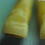 Viking teeth