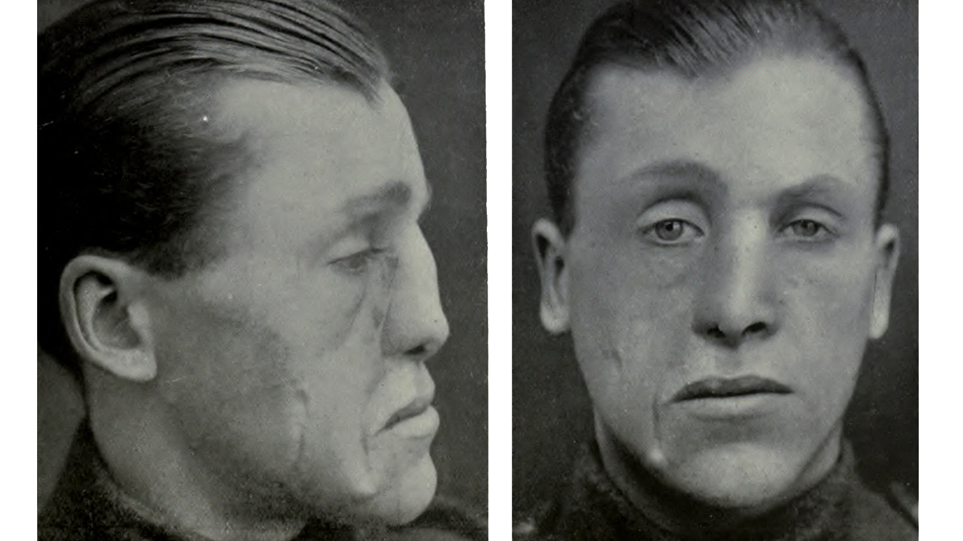 Innovative Cosmetic Surgery Restored WWI Vets' Ravaged Faces—And Lives