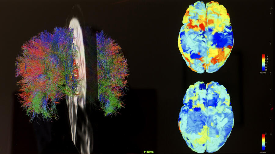 brain scans fMRI