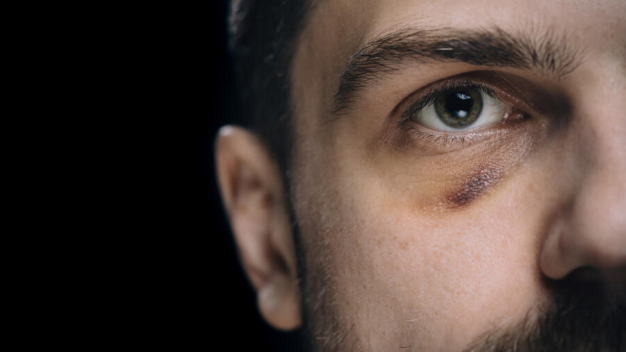 Conceptual photo of an abused man with a black eye