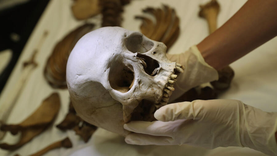 Skull examined by a forensic anthropologist